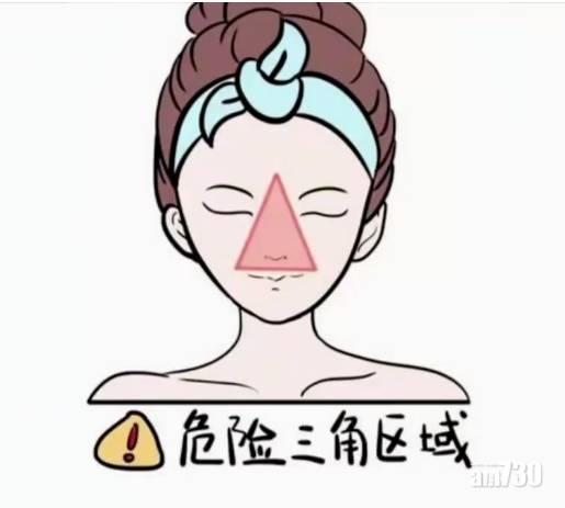 寧波女唧鼻樑暗瘡 顱內嚴重感染險死