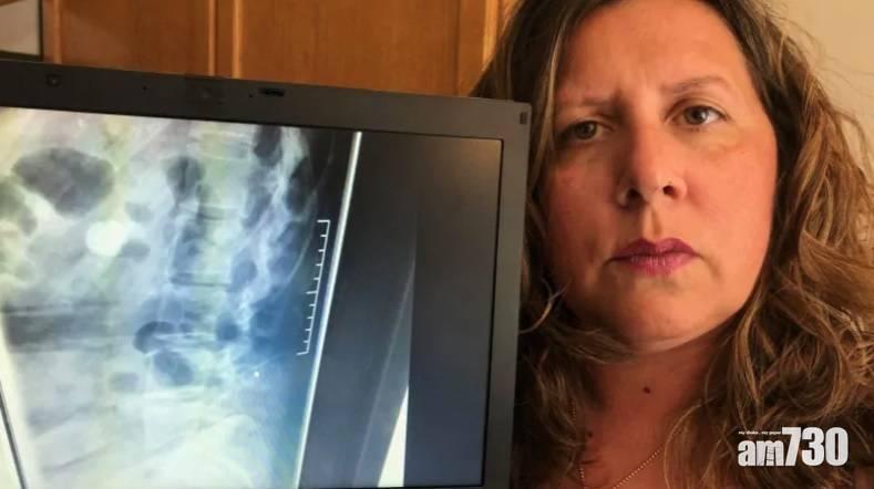 【醫療失誤】分娩10多年後驚見麻醉針留脊椎 加婦:無法移除很徬徨