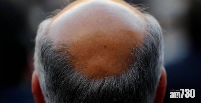 【新冠肺炎】日本研究:新冠康復者脫髮持續兩個半月