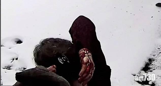 【凶狠】頻遭松鼠襲擊  紐約居民染血不敢外出