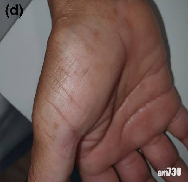 新冠肺炎|西班牙現新病徵「新冠舌頭」 手腳也有變異