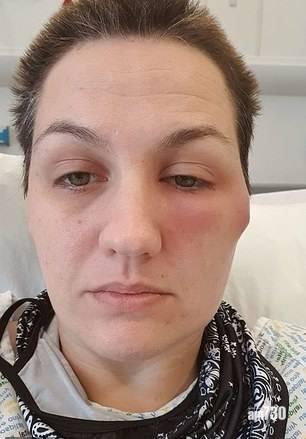 新冠肺炎 英女注射阿斯利康疫苗過敏  雙腳長滿恐怖血泡