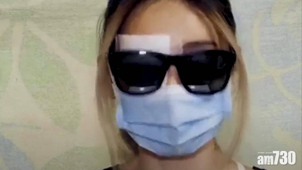 被批隱瞞「爆眼少女」傷勢 醫管局稱非事實