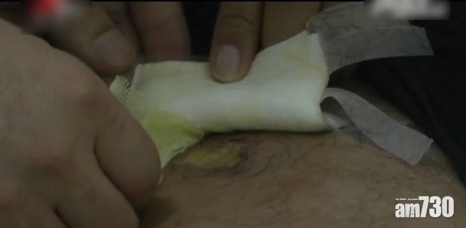 男子網購「去毒」眼鏡蛇被咬險死 賣家辯「發錯貨」