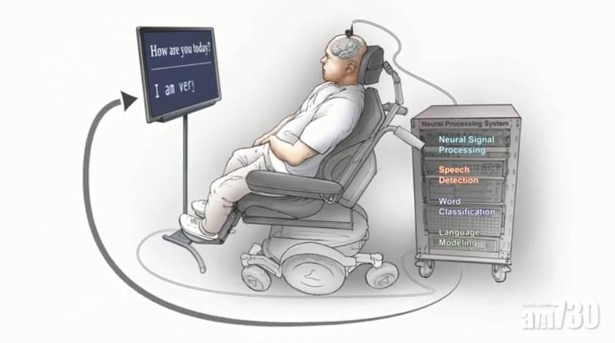 破天荒|亞裔專家研成「讀腦術」!癱瘓者腦電波秒變文字(有片)