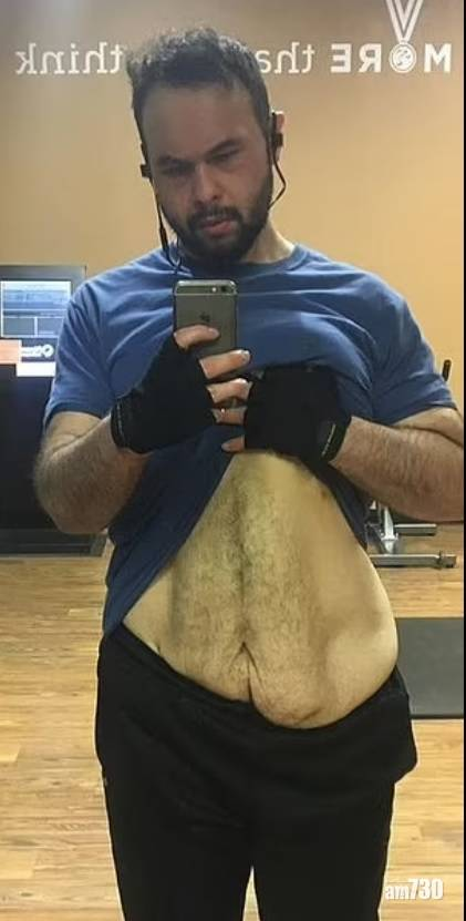 自信好緊要|一年甩203磅肥肉變「沙皮」  28歲男唔介意反覺Cool