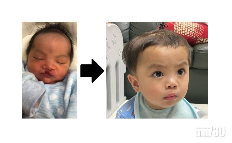 一場手術決定一生臉孔 無懼療程漫長