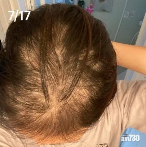 新冠疫苗 日女打針後掉髮一個月變禿頭   醫生未能確定與疫苗有關