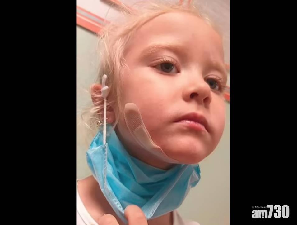 有片 俄5歲女將蛇纏頸拍照突被咬  動物專家解構被襲原因